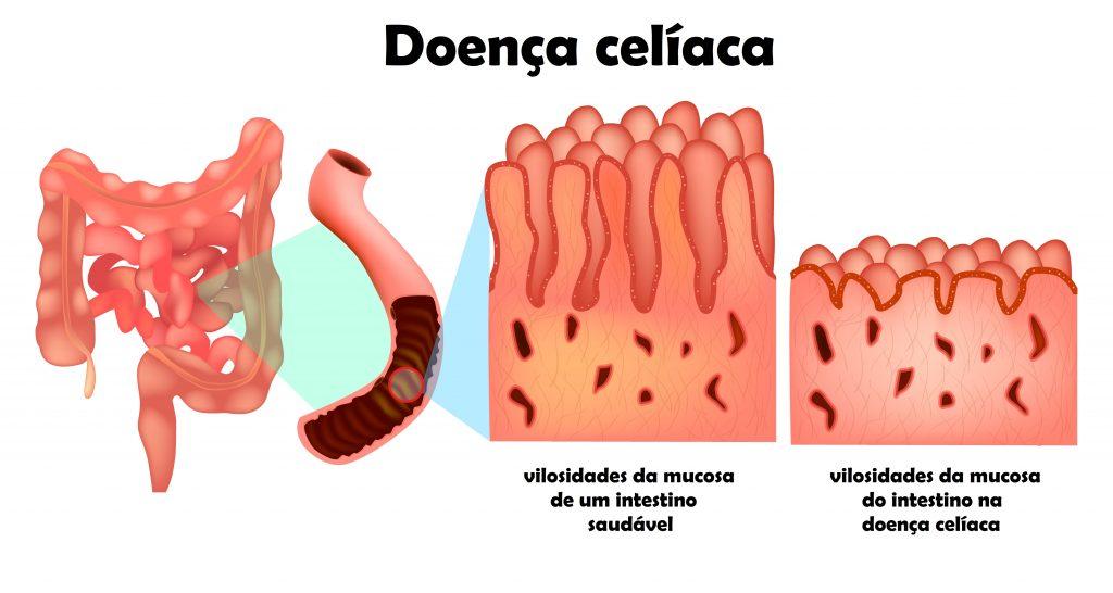Doença celíaca e intestino