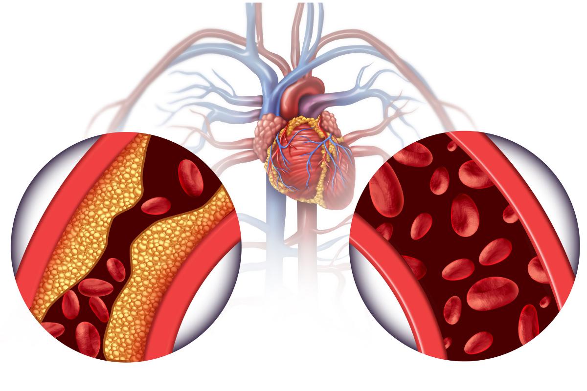 Aterosclerose ou arterioesclerose