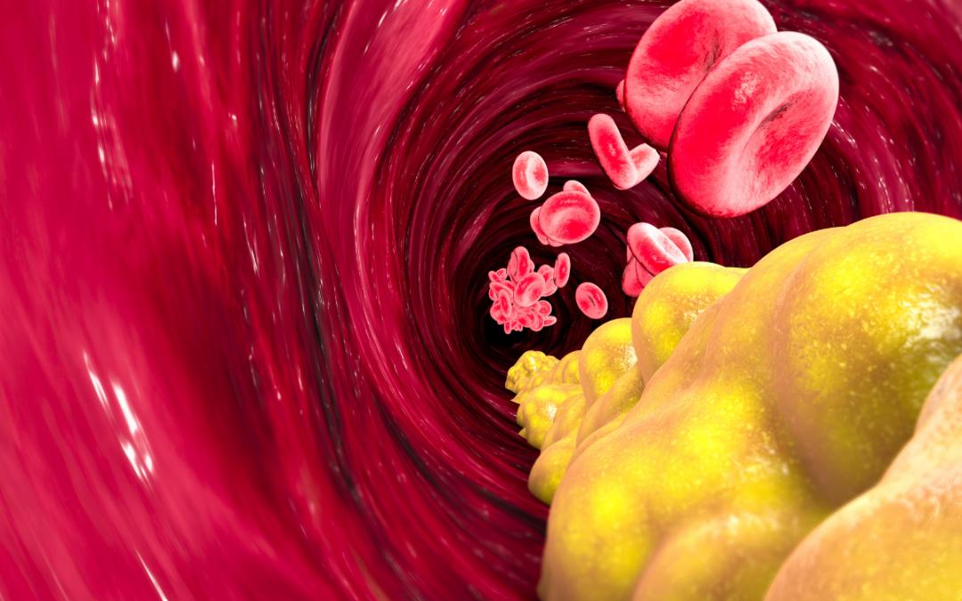 Colesterol e triglicérides