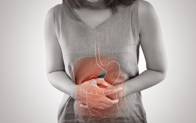 Diverticulite e diverticulose: 6 atitudes para evitar e combater problemas intestinais