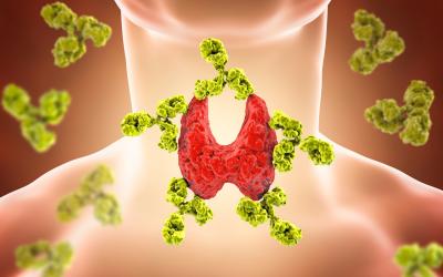 Tireoidite de Hashimoto: uma doença autoimune e silenciosa