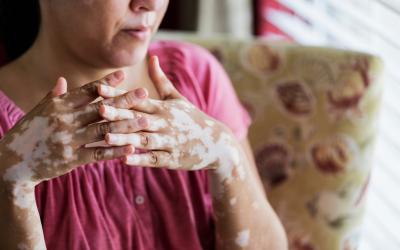 Vitiligo: o que você precisa saber sobre essa doença?