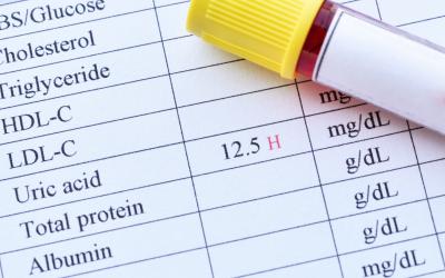 Ácido úrico: causas, sintomas e como ele afeta a saúde